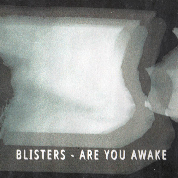 Weird_Canada-Blisters-Are_You_Awake